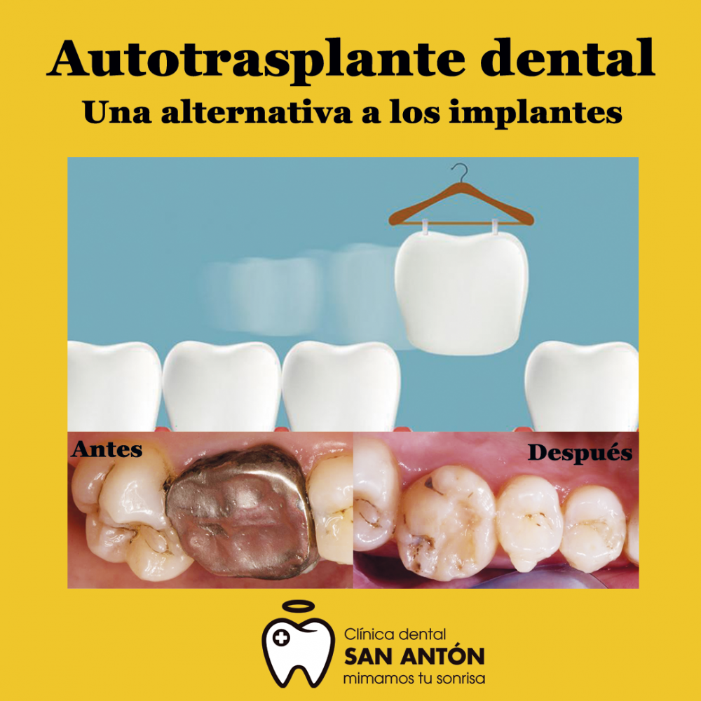 Autotrasplante dental, una alternativa a los implantes